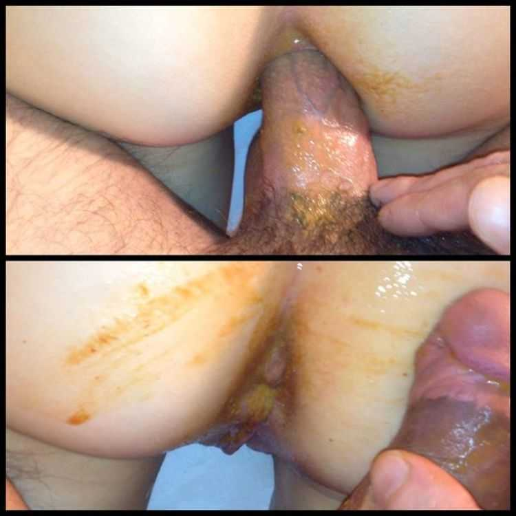 soft-stool-after-anal-gland-secretion-brunett-porn-full-of-cun